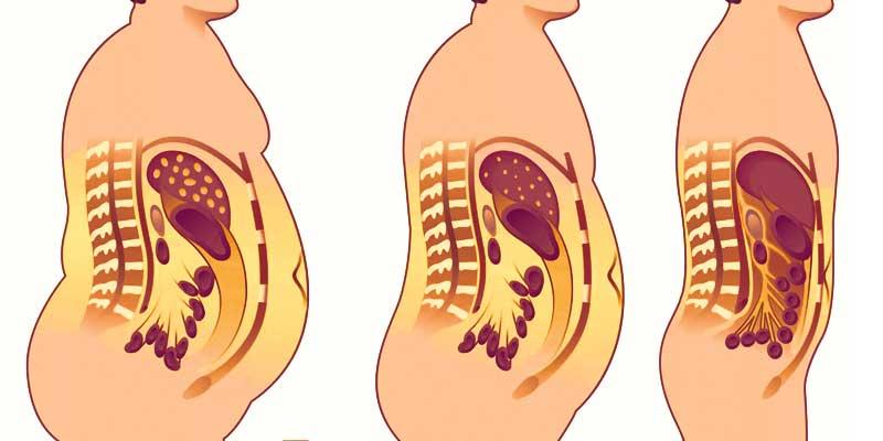 Внутренний жир на органах человека